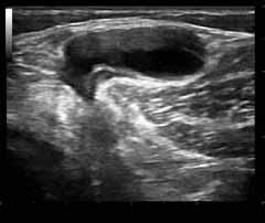 Diagnostic Health Group—Vascular, OB, Dopplers, Ultrasound